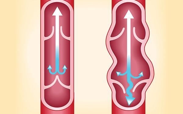 Przewlekła niewydolność żylna: przyczyny, objawy, leczenie